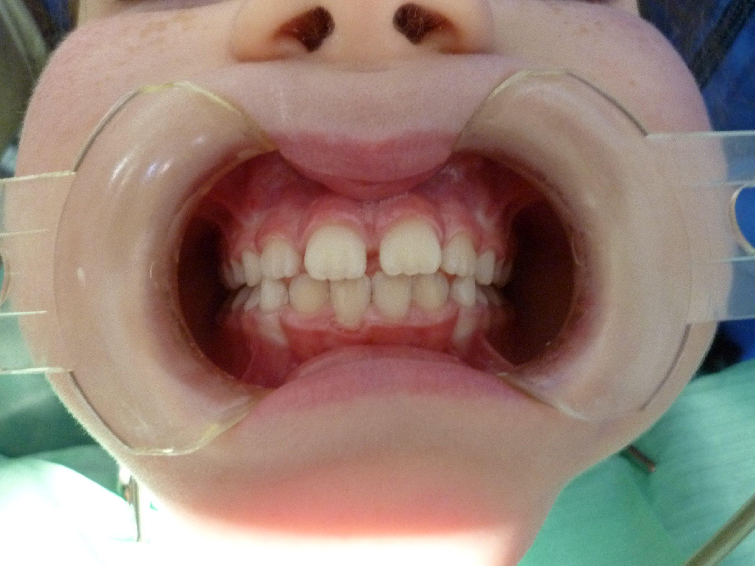 Paziente prima del trattamento di ortodonzia intercettiva