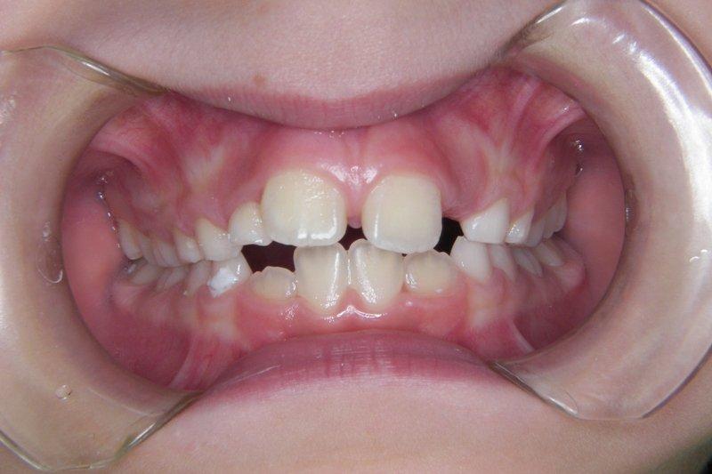 Caso clinico prima del trattamento ortodonzia intercettiva