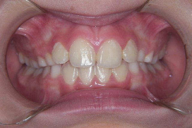 Caso clinico dopo il trattamento ortodonzia intercettiva