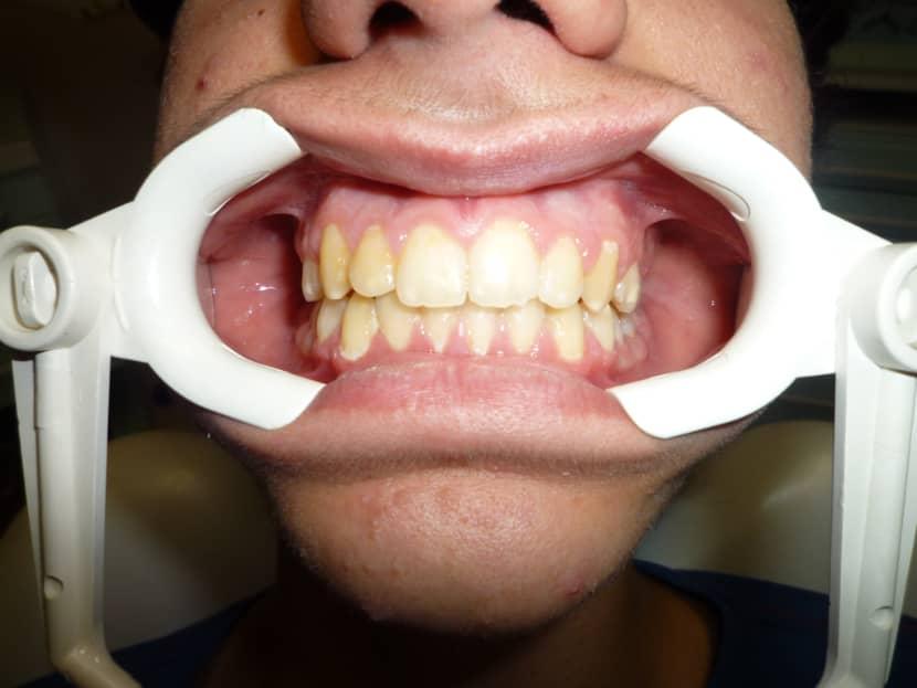 Paziente dopo del trattamento di ortodonzia