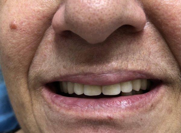 Arcata inferiore, prima di Implantoprotesi su impianti
