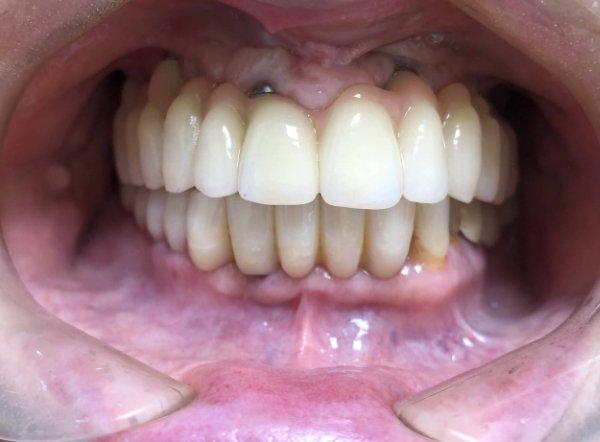 Arcata inferiore, dopo Implantoprotesi su impianti